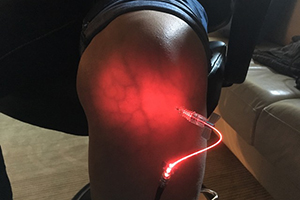 Red Laser Therapy on Knee